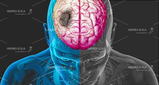 Lo schema mostra dove si verifica il danno cerebrale che può essere conseguente alla emorragia oppure alla ischemia