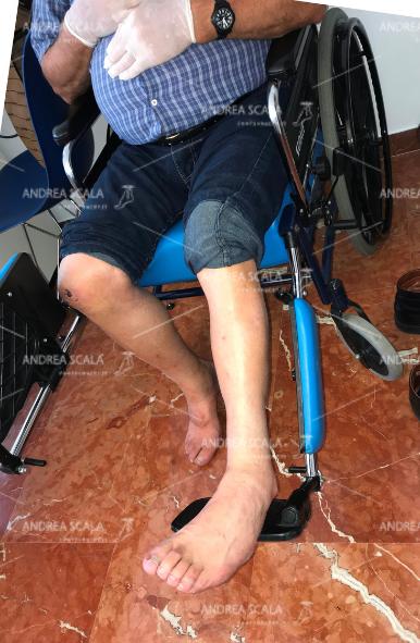 Questo paziente da anni è costretto a stare nella carrozzina perché non può appoggiare al suolo il piede equino varo supinato.