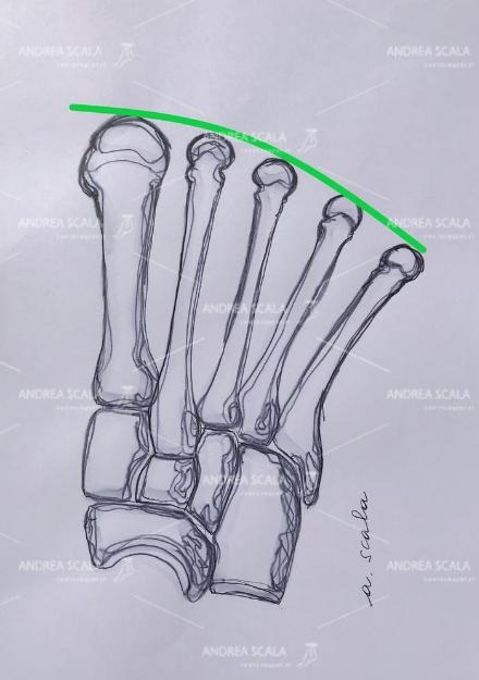 Normalmente il 1° metatarsale è allo stesso livello del 2°. Questo consente la normale anatomica e regolare distribuzione del peso corporeo nella fase d'appoggio e nella deambulazione.