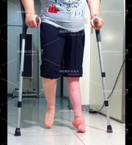 Il piede deformato dall'ictus è equino varo supinato. La paziente non può assolutamente appoggiare sul piede deformato. La riabilitazione non ha portato risultati positivi dopo anni e anni. La molla di Codivilla non potrà mai correggere il piede. La paziente non potrà mai lasciare le stampelle. Solo l'intervento può correggere il piede, permettere di appoggiare la pianta e deambulare senza due stampelle.