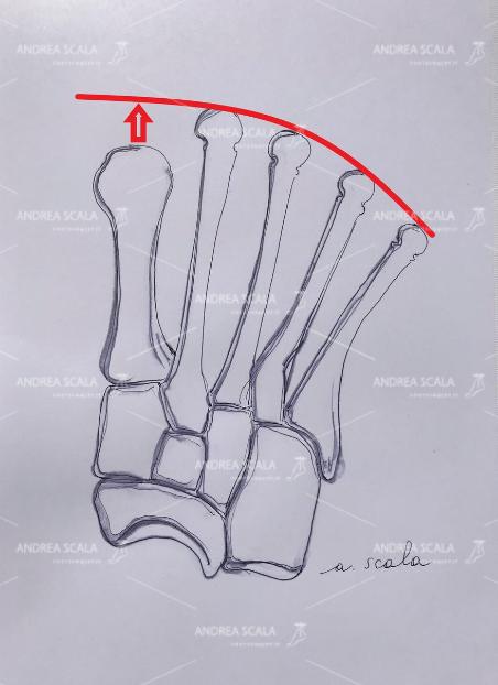 Una grave metatarsalgia può intervenire quando il 1° metatarso è più breve rispetto a quelli laterali. I metatarsali laterali più sottili e fragili del 1° portano più peso di quanto siano attrezzati. Questa è la causa più frequente di metatarsalgia biomeccanica.