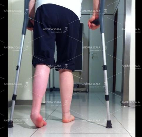 La deformità del piede è molto evidente anche nella visione posteriore. L'appoggio avviene solo sul bordo laterale del piede.