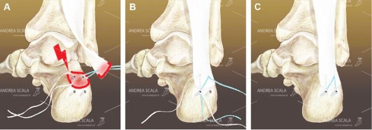 Lo schema mostra l'intervento di staccare il tendine d'Achille, che viene poi riattaccato artificialmente. Il dott. Scala non esegue mai questo intervento.