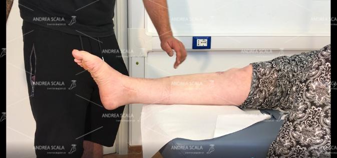 La paziente è rilasciata e porta la caviglia in flessione plantare