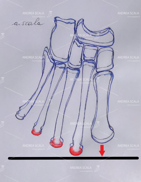 Nella fase propulsiva del passo, quando il piede si appoggia tutto sulla punta i metatarsi più lunghi soffrono molti perché devono sopportare un peso esagerato. Questa alterazione anatomica è la causa più comune e di più immediata comprensione della metatarsalgia. Il neuroma può insorgere nel corso della infiammazione dovuta alla metatarsalgia.