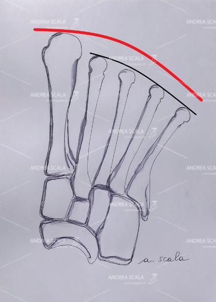 In alcuni casi il 1° metatarso è più lungo dei metatarsali laterali. Questo previene la metatarsalgia, ma si possono verificare altri problemi, quale l'alluce rigido.