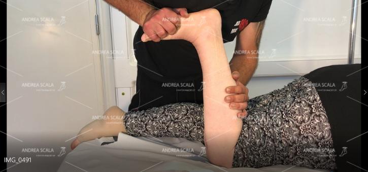 La migliore estensione della caviglia si ottiene con la paziente prona. Il ginocchio è fermo e tutta la forza dell'operatore si esercita sulla caviglia. Si vedono le pieghe della cute quando la caviglia si piega.