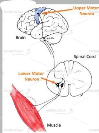 Lo schema mostra che l'origine del movimento muscolare normale e coordinato nasce dalla cellula nervosa collocata nella corteccia cerebrale. L'impulso elettrico si trasmette al 2° motoneurone collocato nel midollo spinale. L'impulso elettrico arriva alla placca neuro muscolare che contrae il muscolo. L'azione coordinata dei muscoli agonisti ed antagonisti permette i normali movimenti degli arti.