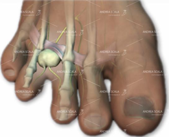 Si forma una vera e propria pallina, poco prima che il nervo si biforchi a livello delle dita.