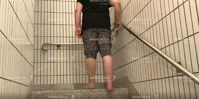 Posizione della paziente sul gradino della scala. Appoggiata al corrimano in tutta sicurezza. Appoggia solo la parte anteriore del piede.