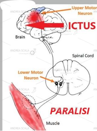 Lo schema mostra che a seguito dell'ictus cerebrale si interrompe la comunicazione con il neurone collocato nel midollo spinale. Il motoneurone periferico privo di controllo scarica impulsi non coordinati ai muscoli degli arti (paralisi flaccida e paralisi spastica). Dal disordine degli impulsi elettrici midollari deriva la deformità degli arti tipica dell'ictus.