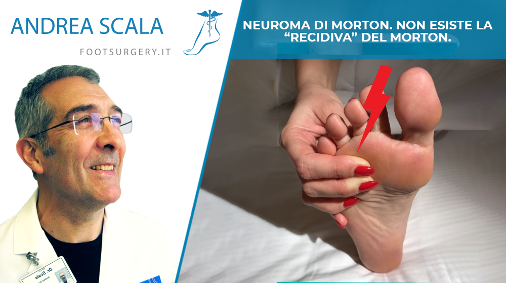 Neuroma di Morton recidivo