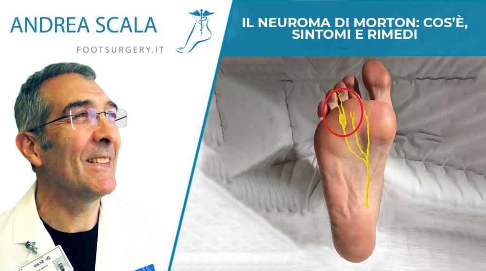 Il neuroma di Morton: cos'è, sintomi e rimedi