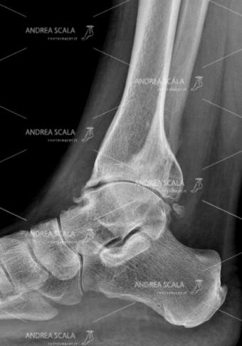 RXgrafia laterale di grave artrosi della caviglia