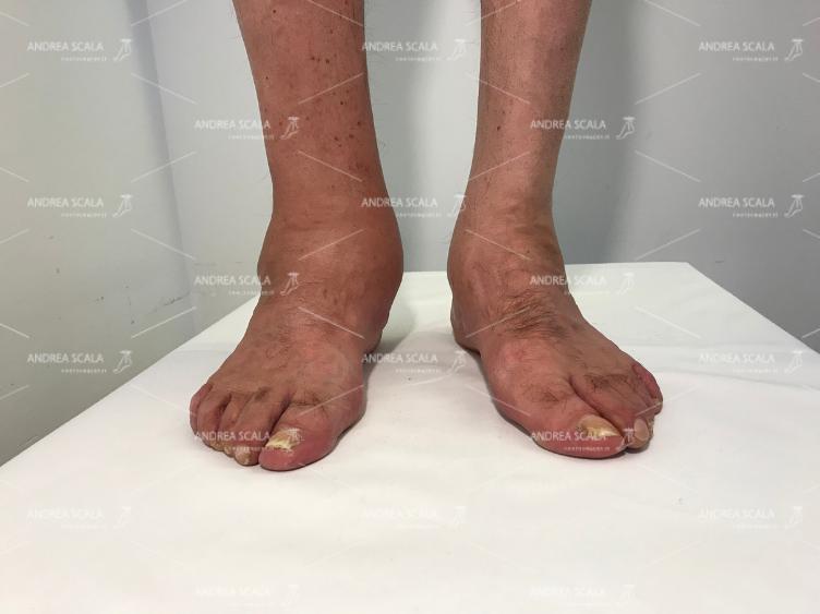caviglia-gonfie-1