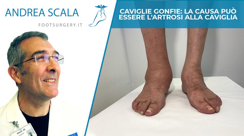 Caviglie gonfie: la causa può essere l'artrosi alla caviglia