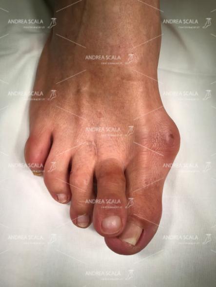 Questa situazione dolorosa, può presentarsi per un insieme di fattori, solitamente ha cause di natura infiammatoria. Alluce valgo e dita a martello sono due patologie congenite che possono favorire la comparsa della metatarsalgia.