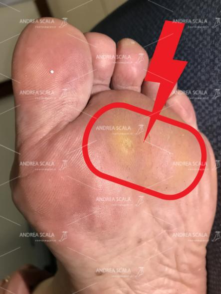 La foto mostra il piede di una paziente con duroni dolorosi, sintomi della metatarsalgia
