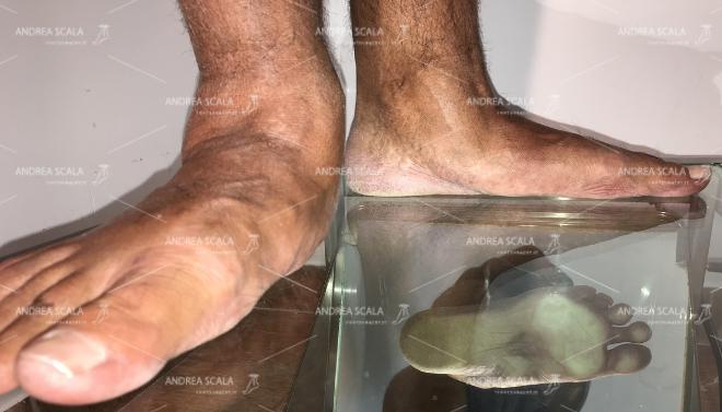 piede piatto adulto 1
