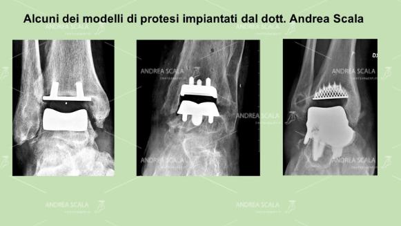 protesi-di-caviglia-dott-andrea-scala