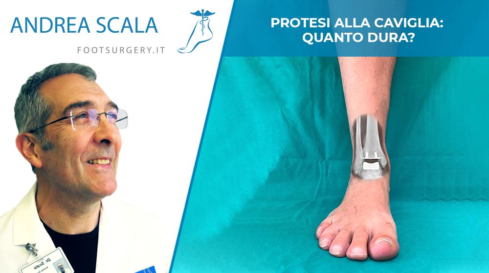 Protesi alla caviglia: quanto dura?