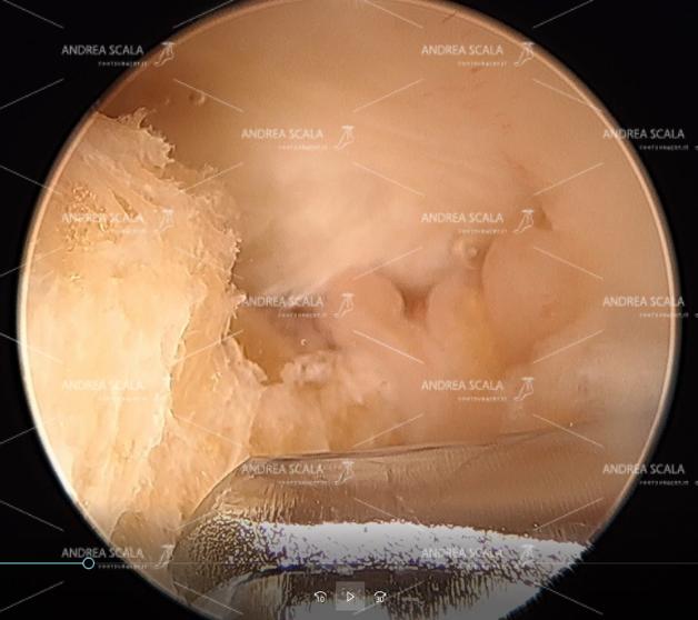 b) si vede il tendine d'Achille, la borsite e la fresa motorizzata che ha iniziato la resezione del calcagno;