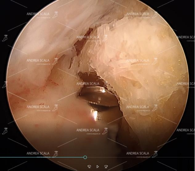 c) si vede la fresa motorizzata che ha iniziato la resezione del calcagno, in alto il tendine d'Achille, la borsite con l'infiammazione;