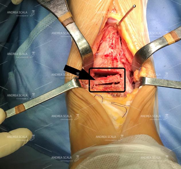 La foto mostra lo spazio che si deve creare nella caviglia (indicato nel riquadro) per consentire l'impianto della protesi. La freccia indica il frammento di astragalo (4 mm) che viene asportato.