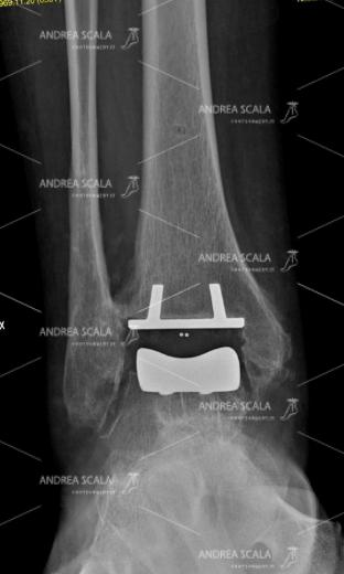 RX con visione anteriore della protesi della caviglia