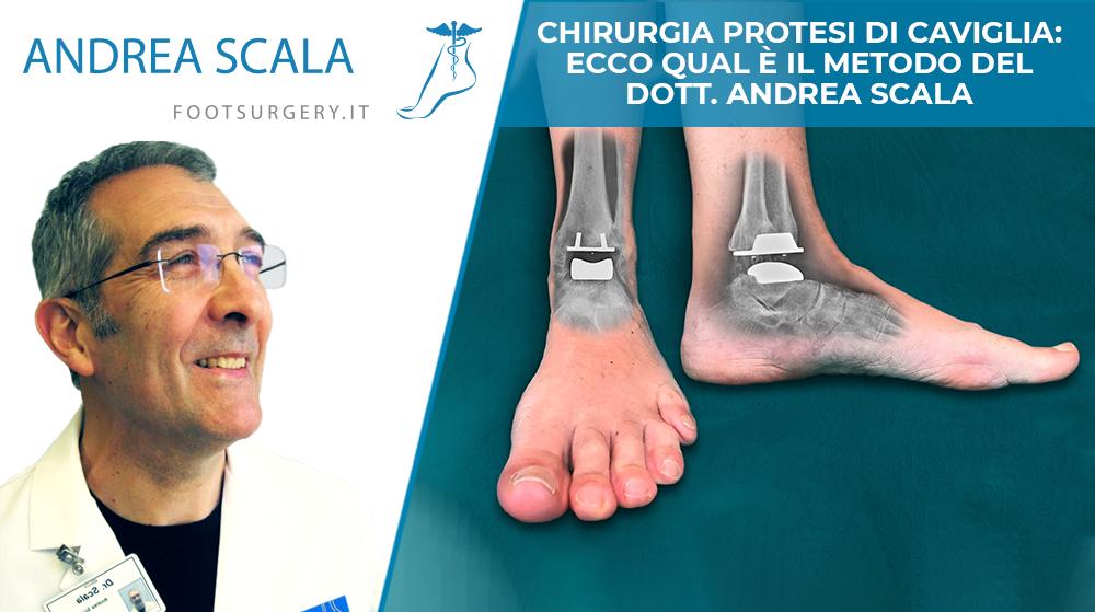 Chirurgia protesi di caviglia: ecco qual è il metodo del Dott. Andrea Scala