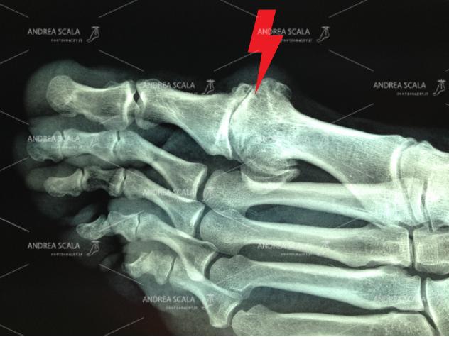 La RXgrafia mostra la grave artrosi dell'alluce. L'articolazione è scomparsa e le ossa si toccano. Si nota il voluminoso sperone osseo in sede dorsale. L'alluce non si può muovere