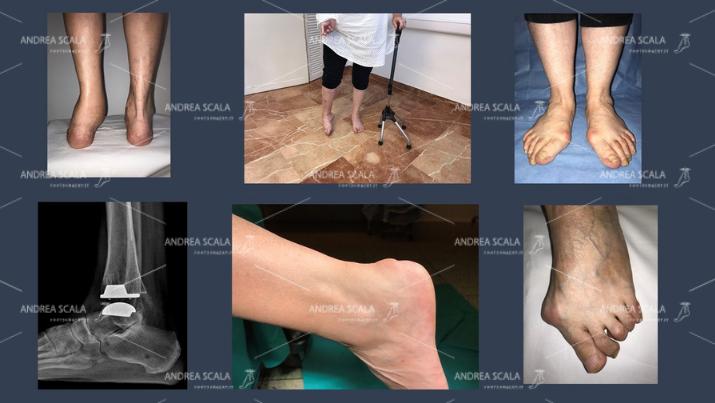 patologie-del-piede-dott-andrea-scala (2)