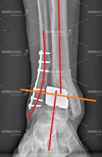 La RXgrafia mostra la visione anteriore della protesi della caviglia. Purtroppo il taglio del perone non è guarito bene e il perone è spostato verso l'esterno. Tutto il piede è spostato all'esterno, in valgo e non si trova sotto l'asse della tibia. La protesi è deviata esternamente come il piede. Il montaggio non è parallelo al suolo, ma è obliquo.