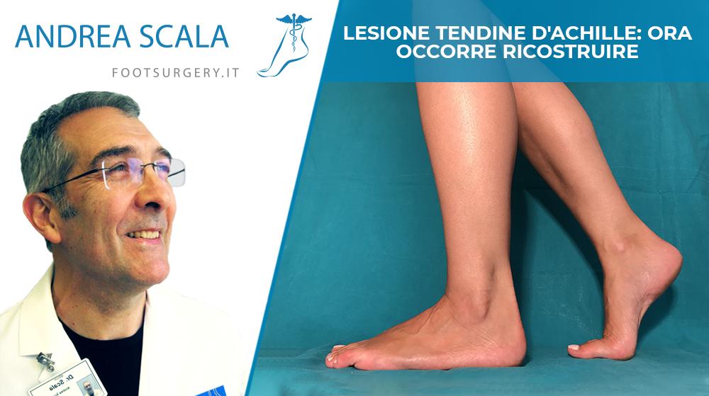 Lesione tendine d'Achille: ora occorre ricostruire