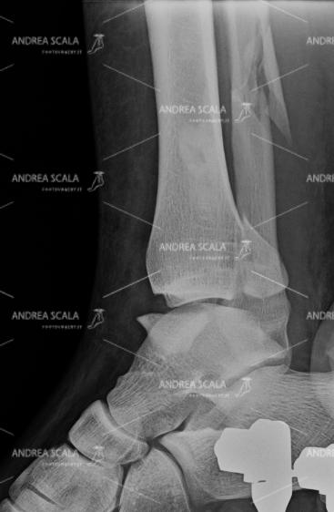 La RXgrafia laterale frattura tri-malleolare 3