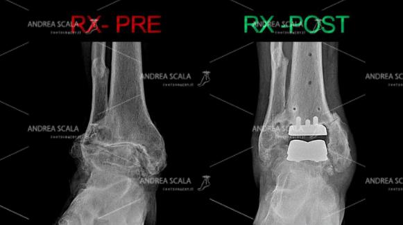 RX-PROTESI-DI-CAVIGLIA-PRE-POST-0.JPEG