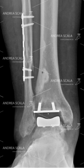 RXgrafia anteriore protesi della caviglia 8