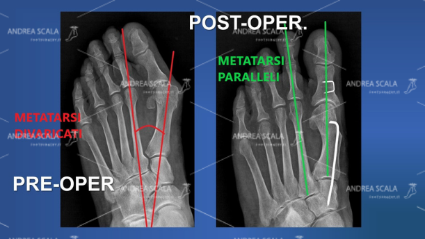 La RXgrafia mostra l'angolo della divaricazione del 1° metatarso. Anche il paziente può controllare da solo se il 1° metatarso è stato allineato ed è parallelo al 2° metatarso. Il sottile filo metallico che si vede è il sostegno dato al metatarso operato ed è l'assicurazione che il metatarso non sarà più divaricato dagli altri.