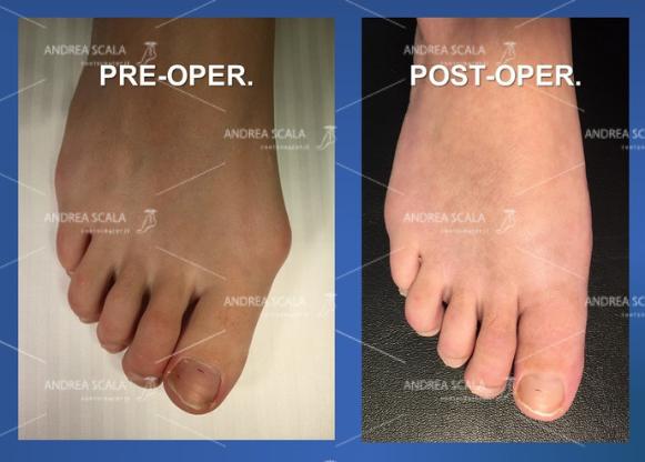Questo dovrebbe essere l'aspetto clinico del piede operato giustamente e correttamente per alluce valgo. E' la prima cosa che il paziente deve notare.