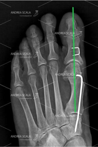 La RXgrafia POST-OPERATORIA mostra la correzione ottenuta con la tecnica personale del dott. Andra Scala. Questa correzione viene resa permanente dal filo metallico che stabilizza la osteotomia. L'alluce non può tornare! L'alluce operato non è più angolato. Il 1° metatarso è parallelo al 2°. I sesamoidi sono sotto la testa del 1° metatarsale.