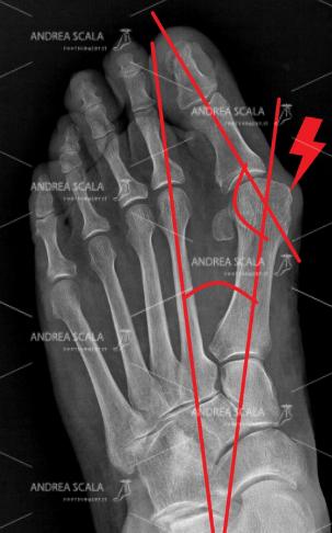 """La RXgrafia PRE-OPERATORIA mostra la deformità dell'alluce valgo. La deviazione del 1° metatarso verso l'interno. La testa del 1° metatarso porta alla formazione di una protuberanza detta """" cipolla"""". L'alluce privato dell'appoggio va a posizionarsi verso l'esterno, in valgo."""