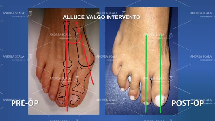 Nella immagine si vede l'alluce valgo prima dell'intervento e il risultato dell'intervento. In particolare si vede l' angolo intermetatarsale patologico e la successiva correzione dell' angolo intermetatarsale dell'alluce valgo.