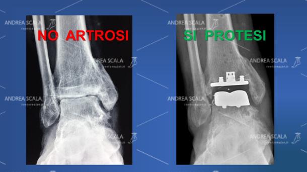 Le RXgrafie laterali della caviglia mettono a confronto la artrosi della caviglia con la protesi. Prima dell'intervento si vede l'artrosi e la compromissione dello spazio articolare. La protesi della caviglia ripristina lo spazio articolare e restituisce il movimento