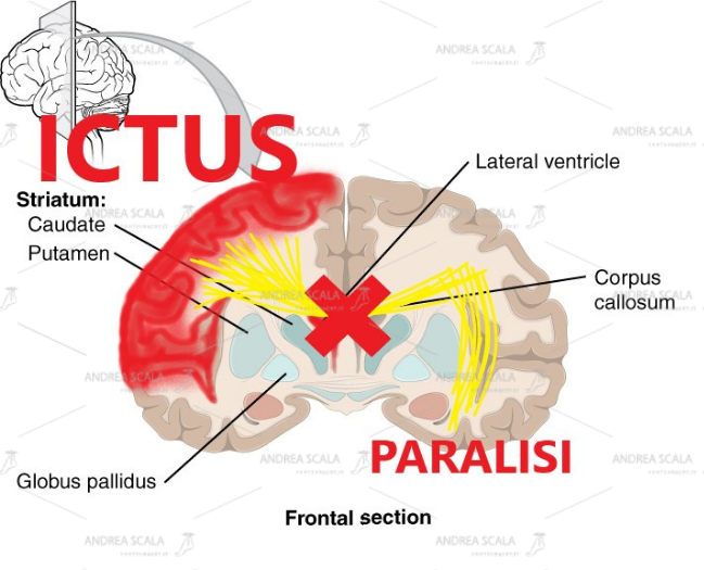 """Il disegno mostra in modo elementare che dopo l'ictus le cellule cerebrali muoiono. Non avviene il passaggio degli impulsi elettrici dall'altra parte del cervello. Tutti comprendono che la parte del corpo opposta all'ictus rimane paralizzata. Non c'è rigenerazione. Non c'è ripresa della elettricità. Non c'è """"neuroplasticità"""". Solo chi ha uno scopo diverso dal benessere insiste per anni con terapie inutili."""