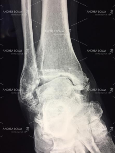 Quando i legamenti non vengono ricostruiti la cartilagine viene gravemente danneggiata. Si forma una artrosi deformante precoce.
