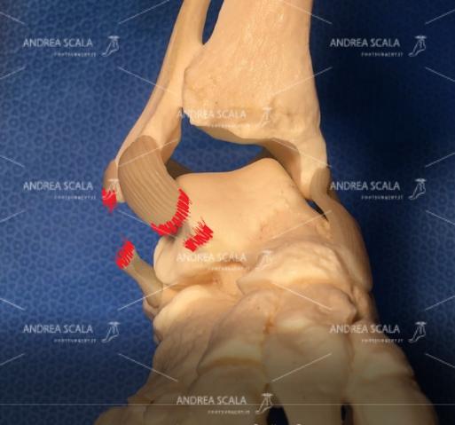 Le distorsioni gravi rompono i legamenti. La caviglia va incontro a lassità e instabilità.