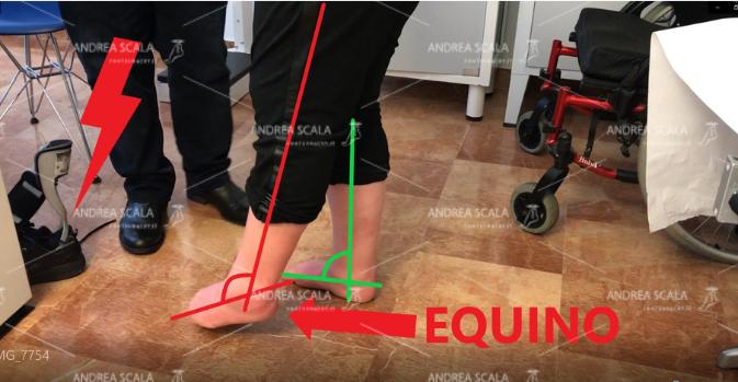 Questa paziente rimane in questa penosa situazione da cinque anni. La riabilitazione e il botulini non hanno corretto il piede equino. Lo schema mostra il piede normale che appoggia al suolo e il piede equino che rimane sollevato a causa della paralisi e della retrazione del tendine d'Achille. Si vede indicata la inutile molla di Codivilla, odiata da tutti i pazienti. Se si perde tempo la deformità diviene fissa, rigida, incorreggibile. Il malato viene condannato alla invalidità e alla deformità per tutta la vita.