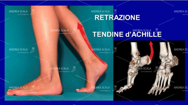Lo schema mostra che la paralisi muscolare dovuta all'ictus provoca la retrazione del tendine d'Achille. A causa della paralisi il calcagno non appoggia al suolo. Nessun botulino e nessuna riabilitazione possono allungare il tendine d'Achille e fare toccare il calcagno al suolo. Solo l'intervento chirurgico può fare questa correzione. Solo chi ha uno scopo diverso insiste per anni con terapie inutili. Solo chi ha uno scopo diverso dalla correzione non comprende che la malattia del cervello non c'entra nulla con la paralisi del piede. Sono due cose distinte e separate.