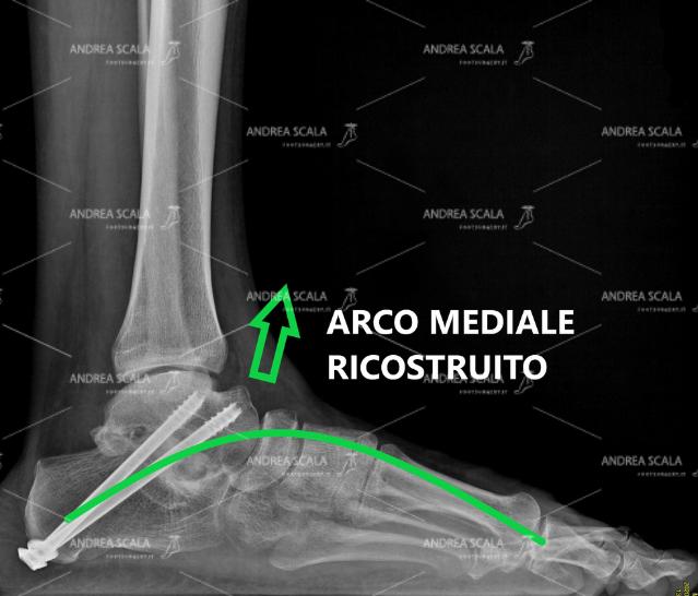 La RXgrafia post-operatoria mostra l'effetto della artrodesi con viti e innesto osseo astragalo-calcaneale. L'arco mediale del piede è ricostruito e sollevato dal suolo.