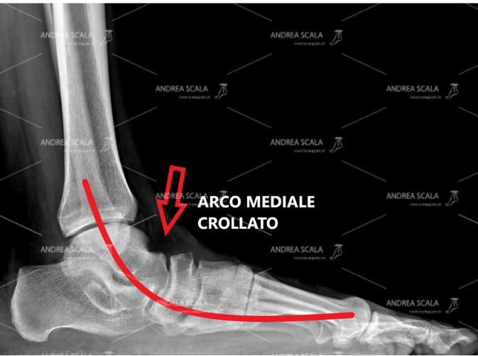 La RXgrafia mostra il grave cedimento dell'arco del piede nel piede piatto valgo pronato dell'adulto.